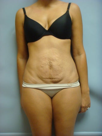 Tummy Tuck  before 1012571