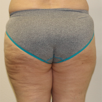 45-54 year old woman treated with Liposculpture of outer thighs (saddle bags). after 3491159