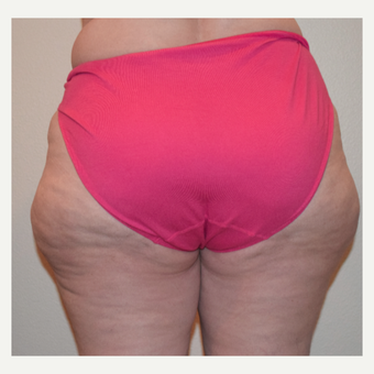 45-54 year old woman treated with Liposculpture of outer thighs (saddle bags). before 3491159