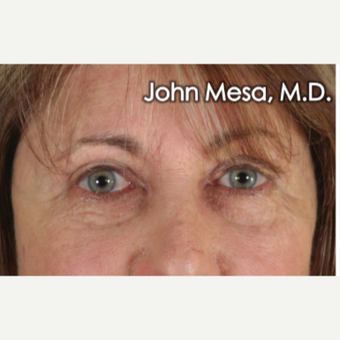 45-54 year old woman treated with Eye Bags Treatment after 3659901