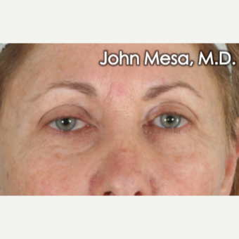 45-54 year old woman treated with Eye Bags Treatment before 3659901