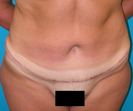 Tummy Tuck after 1596349
