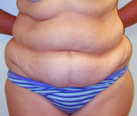 Tummy Tuck before 1596349