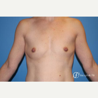 25-34 year old woman treated with Breast Augmentation before 3186316