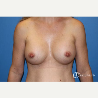 25-34 year old woman treated with Breast Augmentation after 3186316