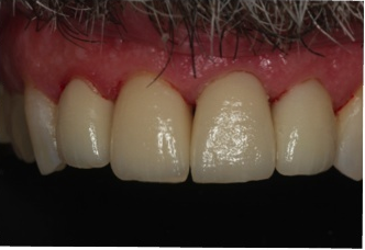 Dental Veneers after 961786