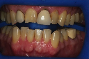 Dental Veneers before 961786