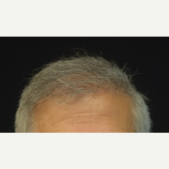 55-64 year old man treated with Hair Transplant after 3507150