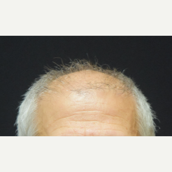 55-64 year old man treated with Hair Transplant before 3507150