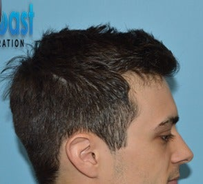 25-34 year old man treated with Hair Transplant after 3604755