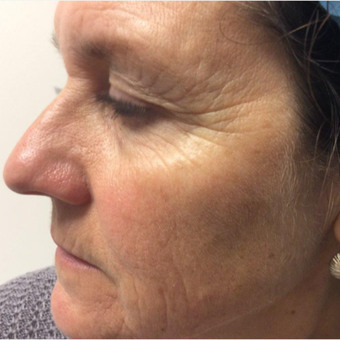 45-54 year old woman treated with Fraxel Laser before 2865138