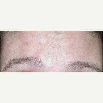 25-34 year old woman treated with Botox after 3447775