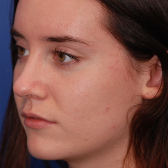 18-24 year old woman treated with Rhinoplasty after 3624133