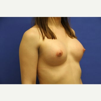 29 year old trans woman treated with MTF Breast Augmentation after 2141289