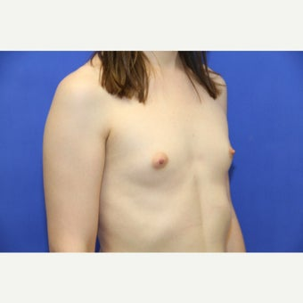 29 year old trans woman treated with MTF Breast Augmentation before 2141289