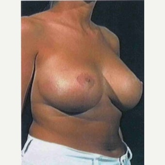 35-44 year old woman treated with Breast Lift after 1791262