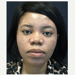 25-34 year old woman treated with Non Surgical Nose Job after 3219642