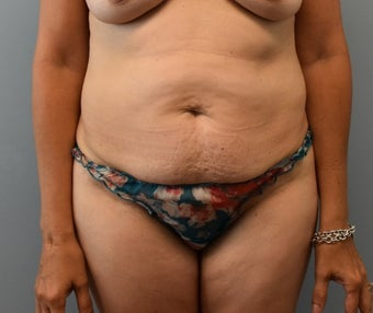 45-54 year old woman treated with Tummy Tuck before 3294098