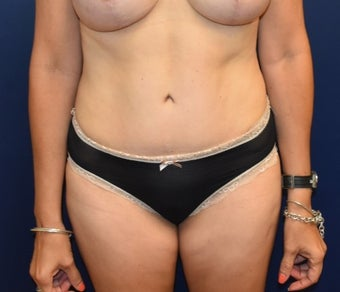 45-54 year old woman treated with Tummy Tuck after 3294098