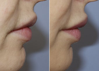 31 Year Old Female - Filler to Lips after 1229011