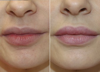 31 Year Old Female - Filler to Lips before 1229011