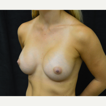 18-24 year old woman treated with Breast Augmentation after 3419246