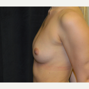 18-24 year old woman treated with Breast Augmentation before 3419246
