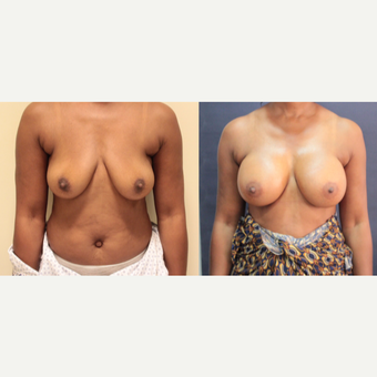 42 year old woman treated with Breast Augmentation after 3073872