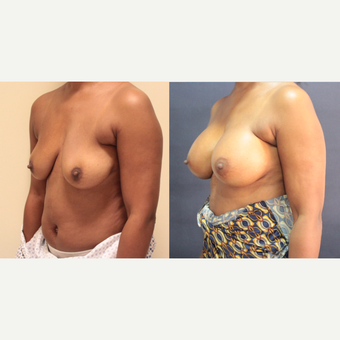 42 year old woman treated with Breast Augmentation before 3073872