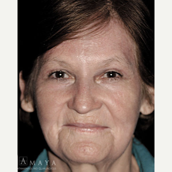 55-64 year old woman treated with Chemical Peel after 3417522