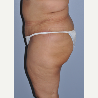 35-44 year old woman treated with Tummy Tuck after 3584293