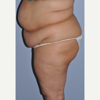 35-44 year old woman treated with Tummy Tuck before 3584293
