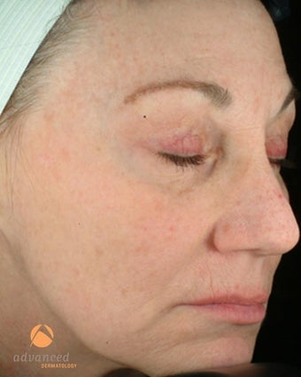 Female treated with 3 Photodynamic Therapy with Levulan for sun damage after 1041644