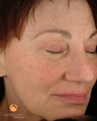 Female treated with 3 Photodynamic Therapy with Levulan for sun damage before 1041644