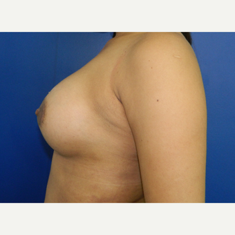 25-34 year old woman treated with Breast Augmentation after 3099302