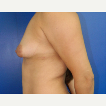 25-34 year old woman treated with Breast Augmentation before 3099302