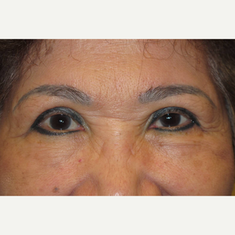 65-74 year old woman treated with Asian Eyelid Surgery after 3677405