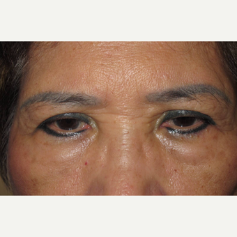 65-74 year old woman treated with Asian Eyelid Surgery before 3677405