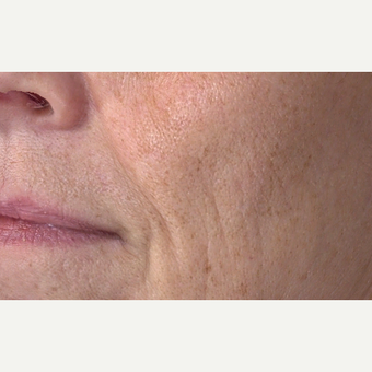 55-64 year old woman treated with Laser Treatment after 3305851
