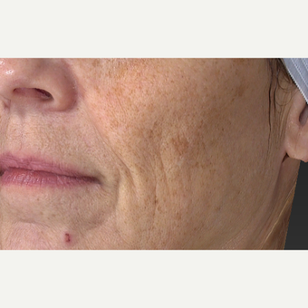 55-64 year old woman treated with Laser Treatment before 3305851