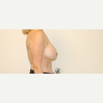 55-64 year old woman treated with Breast Lift with Implants before 3032471