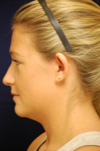 18-24 year old woman treated with Ear Surgery 3240463