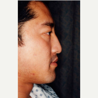35-44 year old man treated with Rhinoplasty before 3242536