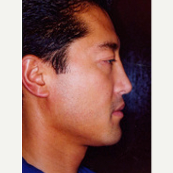 35-44 year old man treated with Rhinoplasty after 3242536