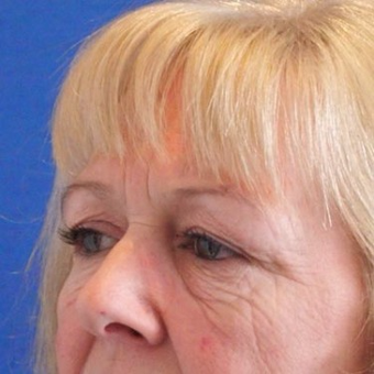 45-54 year old woman treated with Eyelid Surgery before 3497027