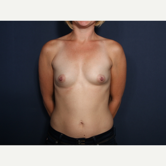 25-34 year old woman treated with Breast Augmentation (view 1 of 2) before 3266815