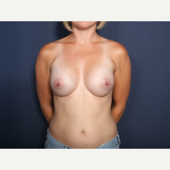 25-34 year old woman treated with Breast Augmentation (view 1 of 2) after 3266815