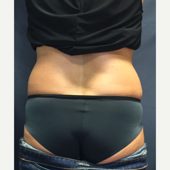 45-54 year old woman treated with SculpSure before 3725378