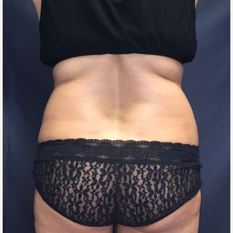 45-54 year old woman treated with SculpSure after 3725378