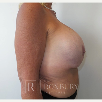 55-64 year old woman treated with Breast Implant Removal before 3850826